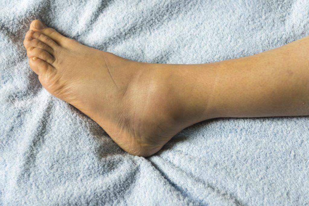 Ankle Joint Pain And Swelling Health Hearty