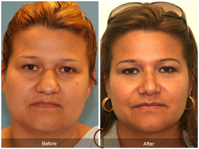 Improve Nose Raise Without Surgical Treatment